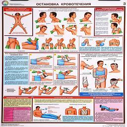 плакат остановка кровотечения